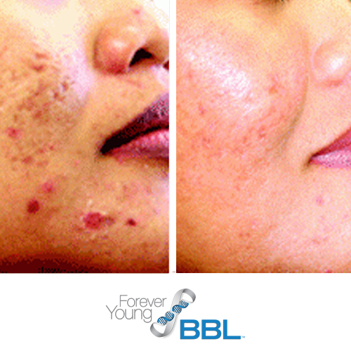 acne laser, forever young bbl